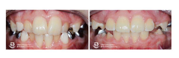 Crowding and Anterior Crossbite (1)