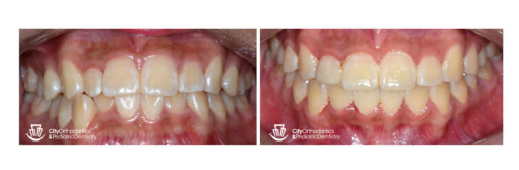 Crowding and Small Upper Right Lateral Incisor