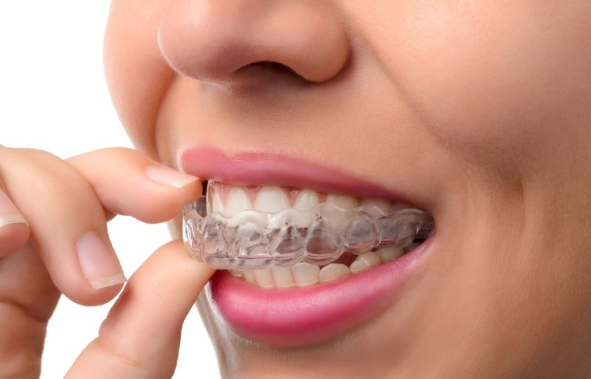 Woman,Wearing,Orthodontic,Silicone,Trainer.,Invisible,Braces